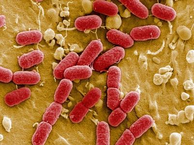 coli104h4